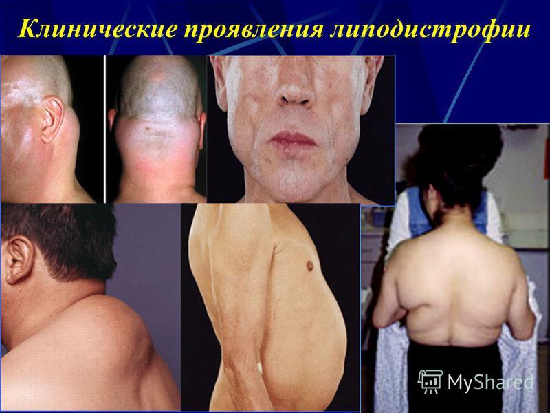 Клинические проявления липодистрофии