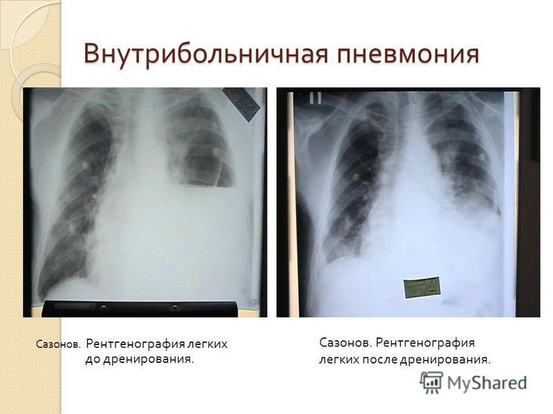 Внутрибольничная пневмония Внутрибольничная пневмония Сазонов. Рентгенография легких до дренирования. Сазонов. Рентгенография легких после дренирования.