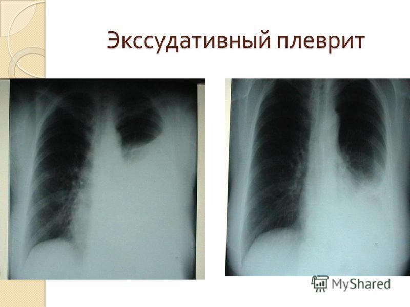 Экссудативный плеврит Экссудативный плеврит