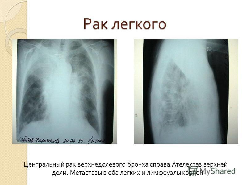 Рак легкого Рак легкого Центральный рак верхнедолевого бронха справа. Ателектаз верхней доли. Метастазы в оба легких и лимфоузлы корней..