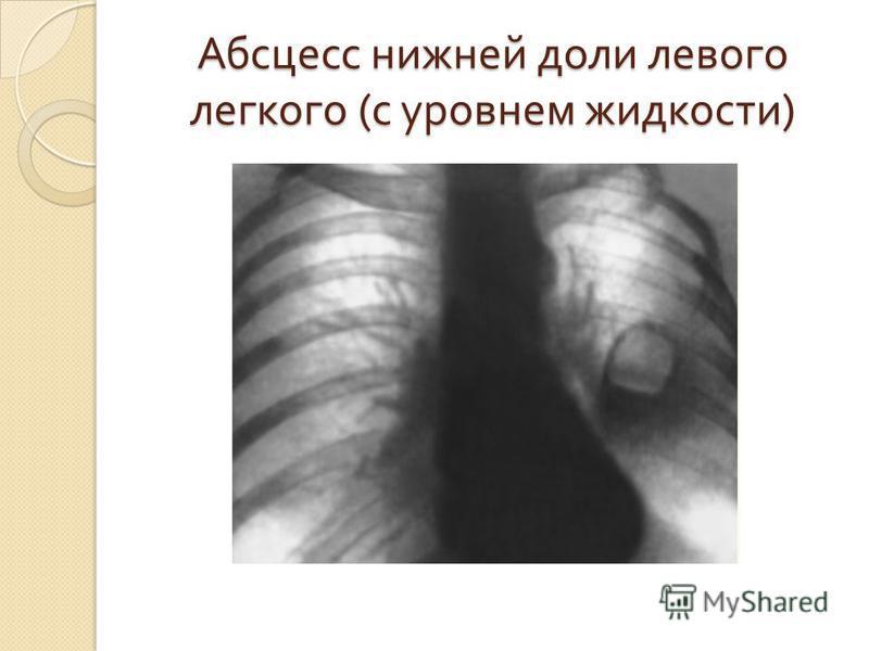 Абсцесс нижней доли левого легкого ( с уровнем жидкости )