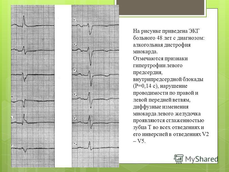 На рисунке приведена ЭКГ больного 48 лет с диагнозом: алкогольная дистрофия миокарда. Отмечаются признаки гипертрофии левого предсердия, внутрипредсердной блокады (Р=0,14 с), нарушение проводимости по правой и левой передней ветвям, диффузные изменен