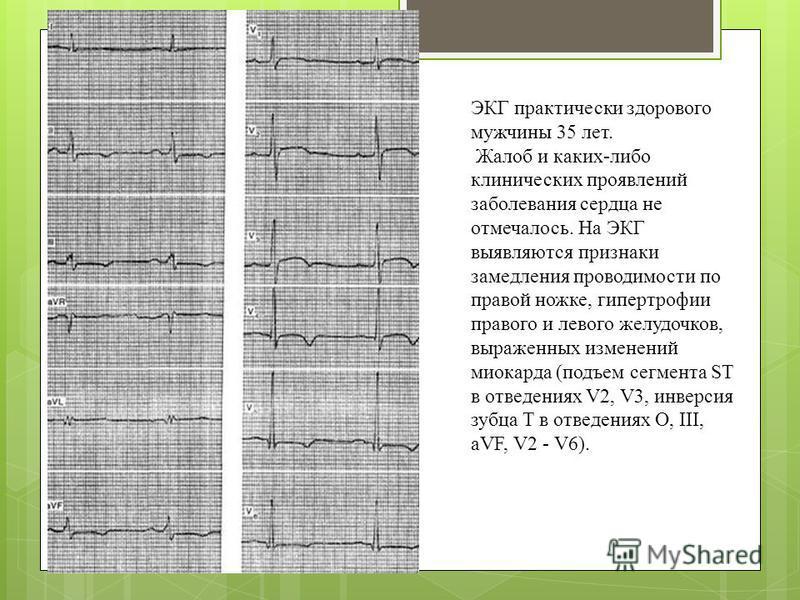 ЭКГ практически здорового мужчины 35 лет. Жалоб и каких-либо клинических проявлений заболевания сердца не отмечалось. На ЭКГ выявляются признаки замедления проводимости по правой ножке, гипертрофии правого и левого желудочков, выраженных изменений ми