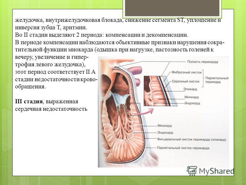 желудочка, внутрижелудочковая блокада, снижение сегмента ST, уплощение и инверсия зубца Т, аритмии. Во II стадии выделяют 2 периода: компенсации и декомпенсации. В периоде компенсации наблюдаются объективные признаки нарушения сокра- тительной функци