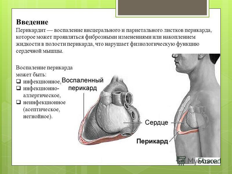 Введение Перикардит воспаление висцерального и париетального листков перикарда, которое может проявляться фиброзными изменениями или накоплением жидкости в полости перикарда, что нарушает физиологическую функцию сердечной мышцы. Воспаление перикарда