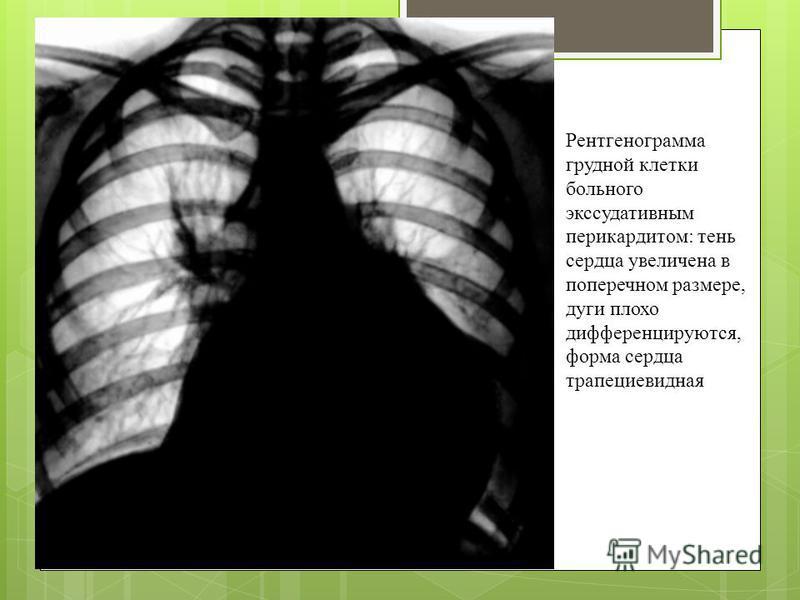Рентгенограмма грудной клетки больного экссудативным перикардитом: тень сердца увеличена в поперечном размере, дуги плохо дифференцируются, форма сердца трапециевидная