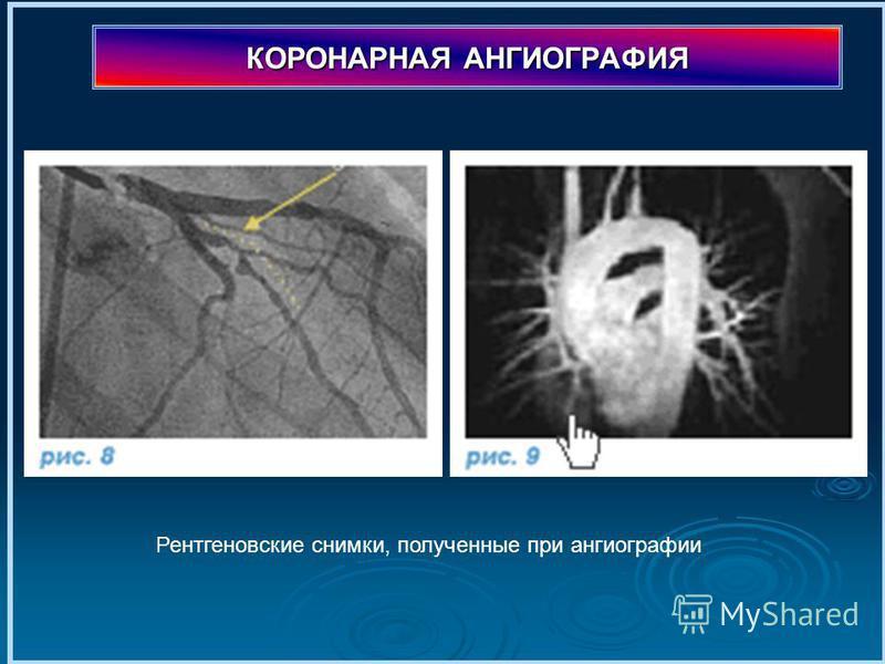 КОРОНАРНАЯ АНГИОГРАФИЯ Рентгеновские снимки, полученные при ангиографии