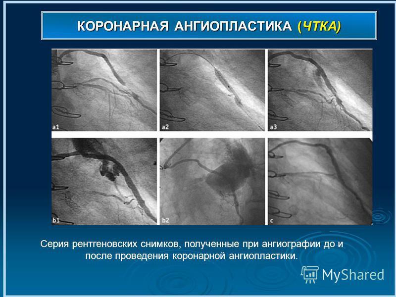 КОРОНАРНАЯ АНГИОПЛАСТИКА (ЧТКА) Серия рентгеновских снимков, полученные при ангиографии до и после проведения коронарной ангиопластики.