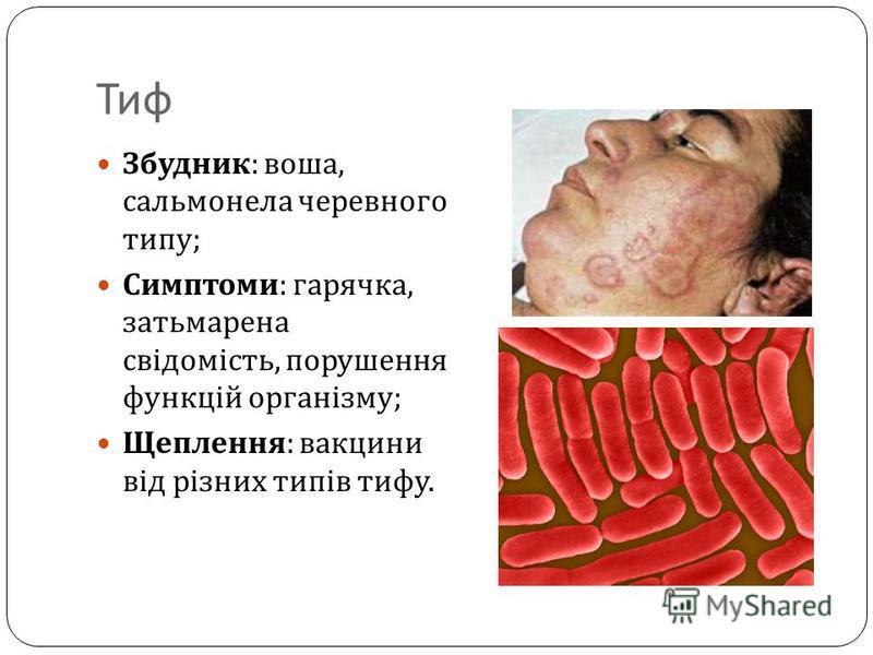 Тиф Збудник : воша, сальмонела черевного типу ; Симптоми : гарячка, затьмарена свідомість, порушення функцій організму ; Щеплення : вакцини від різних типів тифу.