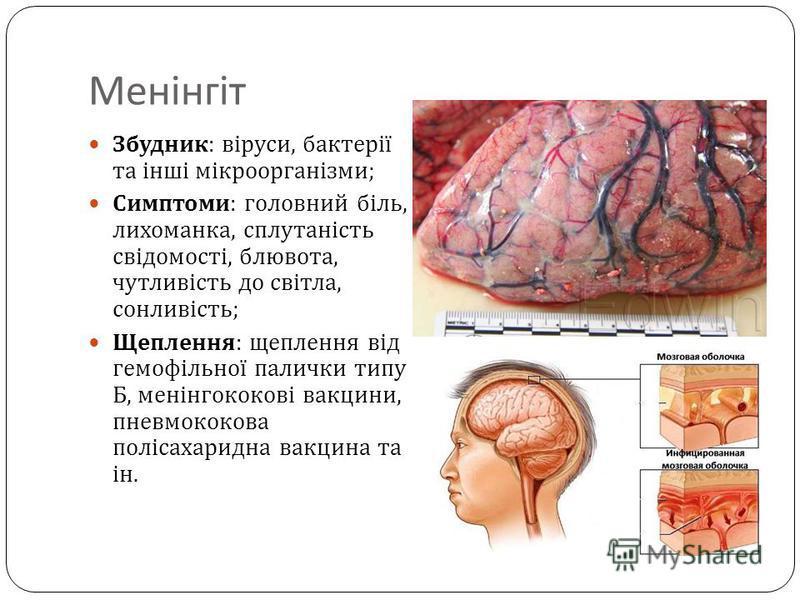 Менінгіт Збудник : віруси, бактерії та інші мікроорганізми ; Симптоми : головний біль, лихоманка, сплутаність свідомості, блювота, чутливість до світла, сонливість ; Щеплення : щеплення від гемофільної палички типу Б, менінгококові вакцини, пневмокок