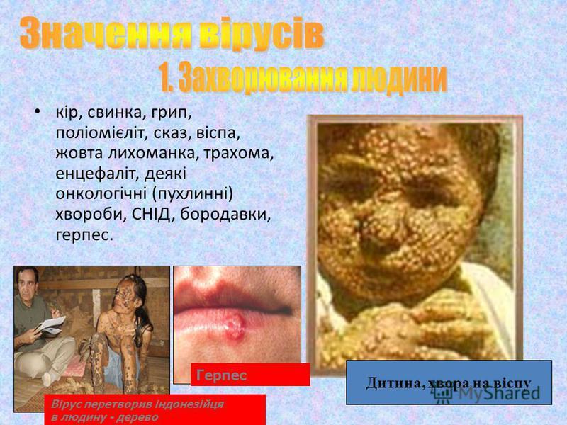 кір, свинка, грип, поліомієліт, сказ, віспа, жовта лихоманка, трахома, енцефаліт, деякі онкологічні (пухлинні) хвороби, СНІД, бородавки, герпес. Дитина, хвора на віспу Герпес Вірус перетворив індонезійця в людину - дерево
