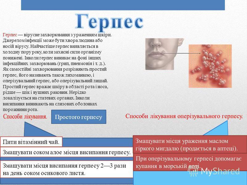 Герпес вірусне захворювання з ураженням шкіри. Джерелом інфекції може бути хвора людина або носій вірусу. Найчастіше герпес виявляється в холодну пору року, коли захисні сили організму понижені. Інколи герпес виникає на фоні інших інфекційних захворю