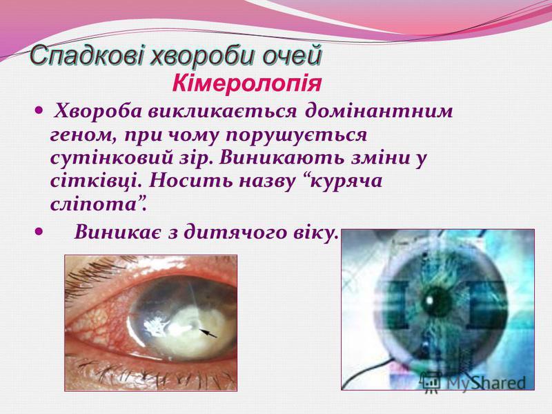 Хвороба викликається домінантним геном, при чому порушується сутінковий зір. Виникають зміни у сітківці. Носить назву куряча сліпота. Виникає з дитячого віку. Кімеролопія