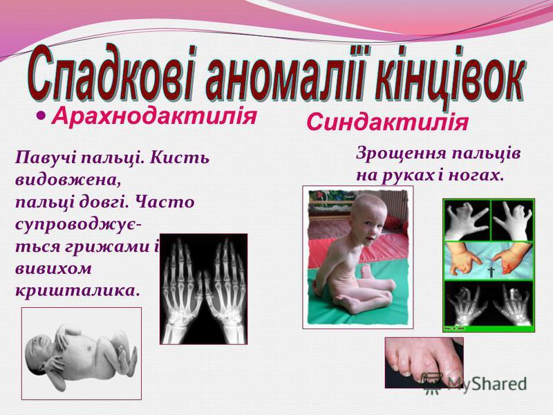Арахнодактилія Павучі пальці. Кисть видовжена, пальці довгі. Часто супроводжує- ться грижами і вивихом кришталика. Синдактилія Зрощення пальців на руках і ногах.