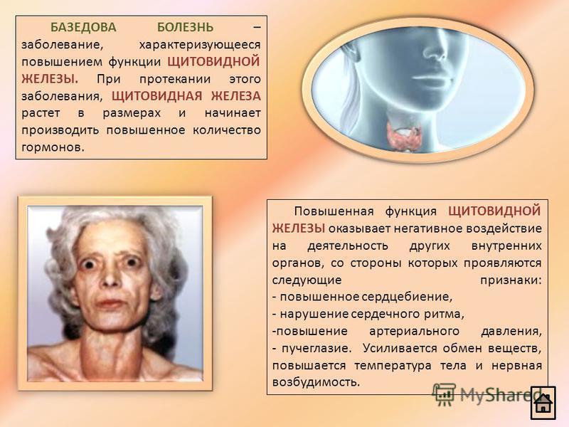 БАЗЕДОВА БОЛЕЗНЬ – заболевание, характеризующееся повышением функции ЩИТОВИДНОЙ ЖЕЛЕЗЫ. При протекании этого заболевания, ЩИТОВИДНАЯ ЖЕЛЕЗА растет в размерах и начинает производить повышенное количество гормонов. Повышенная функция ЩИТОВИДНОЙ ЖЕЛЕЗЫ