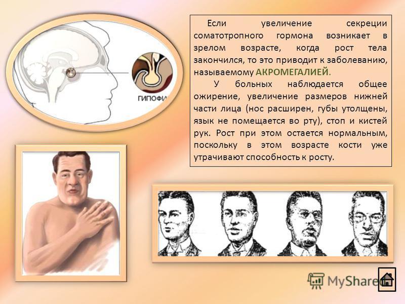 Если увеличение секреции соматотропного гормона возникает в зрелом возрасте, когда рост тела закончился, то это приводит к заболеванию, называемому АКРОМЕГАЛИЕЙ. У больных наблюдается общее ожирение, увеличение размеров нижней части лица (нос расшире