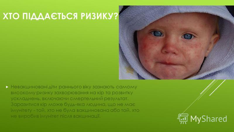 ХТО ПІДДАЄТЬСЯ РИЗИКУ? Невакциновані діти раннього віку зазнають самому високому ризику захворювання на кір та розвитку ускладнень, включаючи смертельний результат. Заразитися кір може будь-яка людина, що не має імунітету - той, хто не була вакцинова