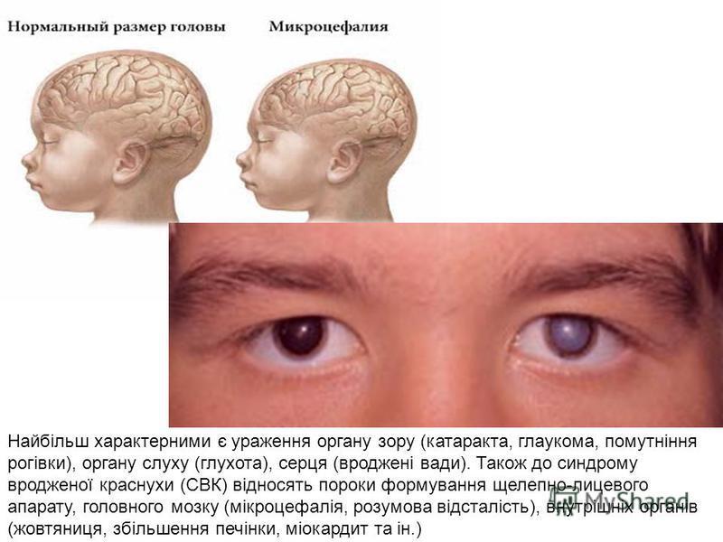 Найбільш характерними є ураження органу зору (катаракта, глаукома, помутніння рогівки), органу слуху (глухота), серця (вроджені вади). Також до синдрому вродженої краснухи (СВК) відносять пороки формування щелепно-лицевого апарату, головного мозку (м