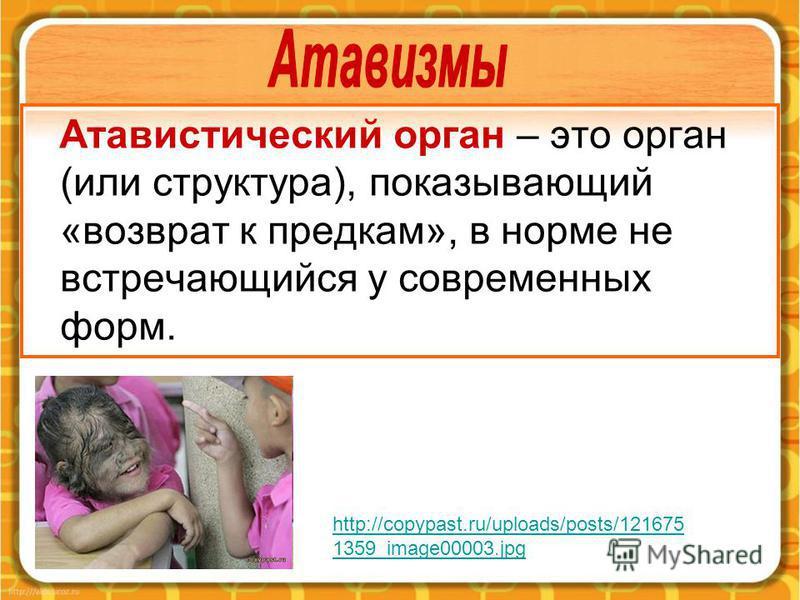 Атавистический орган – это орган (или структура), показывающий «возврат к предкам», в норме не встречающийся у современных форм. http://copypast.ru/uploads/posts/121675 1359_image00003.jpg