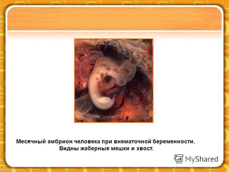 Месячный эмбрион человека при внематочной беременности. Видны жаберные мешки и хвост.