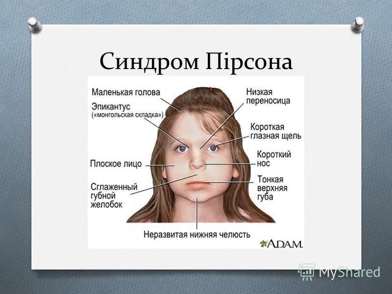 Синдром Пірсона