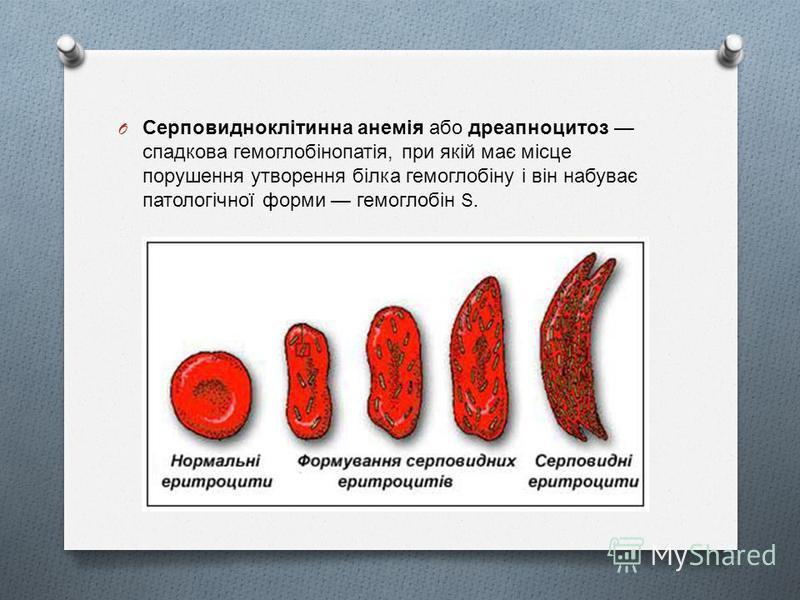 O Серповидноклітинна анемія або дреапноцитоз спадкова гемоглобінопатія, при якій має місце порушення утворення білка гемоглобіну і він набуває патологічної форми гемоглобін S.