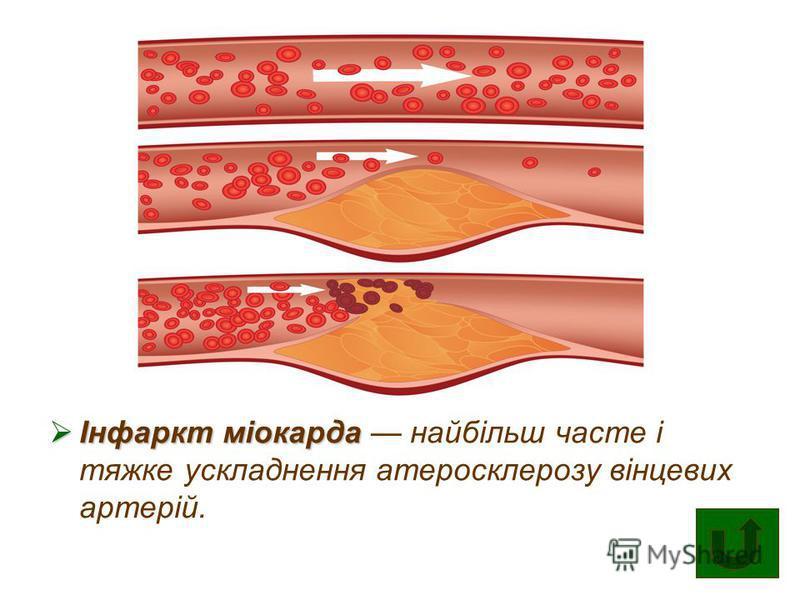 Інфаркт міокарда Інфаркт міокарда найбільш часте і тяжке ускладнення атеросклерозу вінцевих артерій.