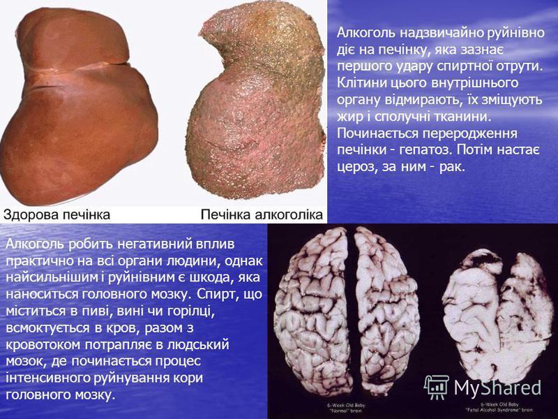 Алкоголь робить негативний вплив практично на всі органи людини, однак найсильнішим і руйнівним є шкода, яка наноситься головного мозку. Спирт, що міститься в пиві, вині чи горілці, всмоктується в кров, разом з кровотоком потрапляє в людський мозок,