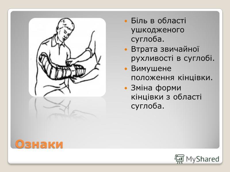 Ознаки Біль в області ушкодженого суглоба. Втрата звичайної рухливості в суглобі. Вимушене положення кінцівки. Зміна форми кінцівки з області суглоба.