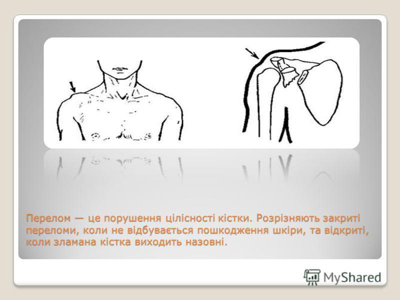 Перелом це порушення цілісності кістки. Розрізняють закриті переломи, коли не відбувається пошкодження шкіри, та відкриті, коли зламана кістка виходить назовні.