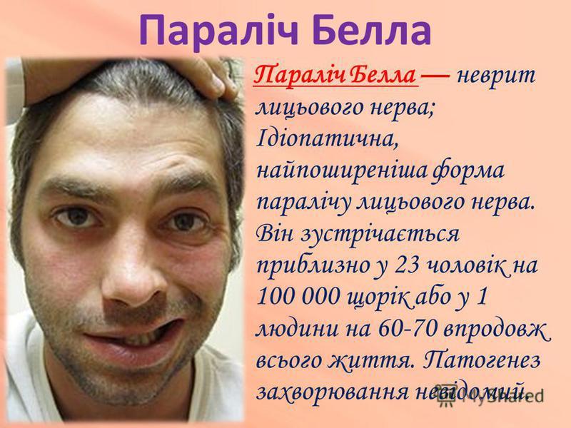 Параліч Белла Параліч Белла неврит лицьового нерва; Ідіопатична, найпоширеніша форма паралічу лицьового нерва. Він зустрічається приблизно у 23 чоловік на 100 000 щорік або у 1 людини на 60-70 впродовж всього життя. Патогенез захворювання невідомий.