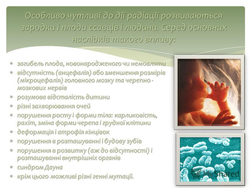 загибель плода, новонародженого чи немовляти загибель плода, новонародженого чи немовляти відсутність (анцефалія) або зменшення розмірів (мікроцефалія) головного мозку та черепно - мозкових нервів відсутність (анцефалія) або зменшення розмірів (мікро