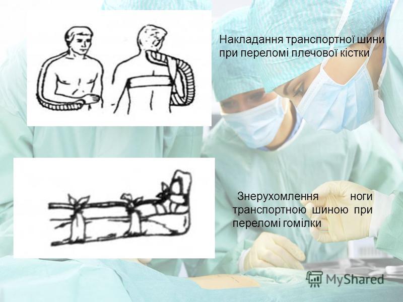 Накладання транспортної шини при переломі плечової кістки Знерухомлення ноги транспортною шиною при переломі гомілки