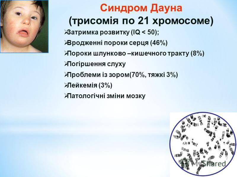 Синдром Дауна (трисомія по 21 хромосоме) Затримка розвитку (IQ < 50); Вродженні пороки серця (46%) Пороки шлунково –кишечного тракту (8%) Погіршення слуху Проблеми із зором(70%, тяжкі 3%) Лейкемія (3%) Патологічні зміни мозку