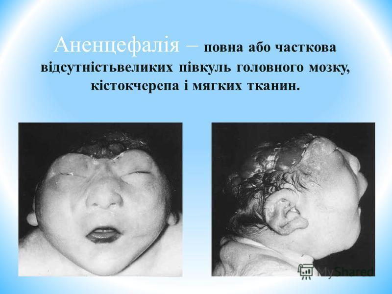 Аненцефалія – повна або часткова відсутністьвеликих півкуль головного мозку, кістокчерепа і мягких тканин.