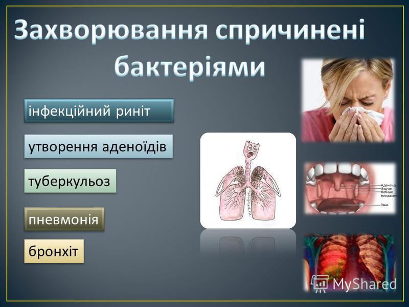 інфекційний риніт утворення аденоїдів туберкульоз бронхіт пневмонія