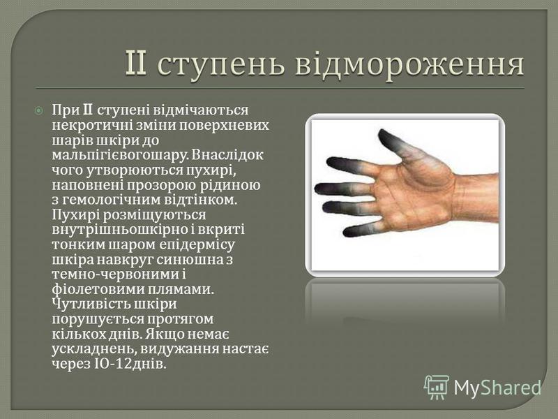 При II ступені відмічаються некротичні зміни поверхневих шарів шкіри до мальпігієвогошару. Внаслідок чого утворюються пухирі, наповнені прозорою рідиною з гемологічним відтінком. Пухирі розміщуються внутрішньошкірно і вкриті тонким шаром епідермісу ш