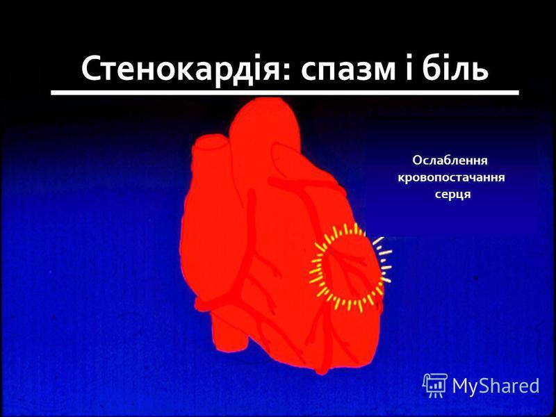 Ослаблення кровопостачання серця Стенокардія: спазм і біль