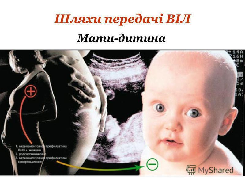 Шляхи передачі ВІЛ Мати-дитина