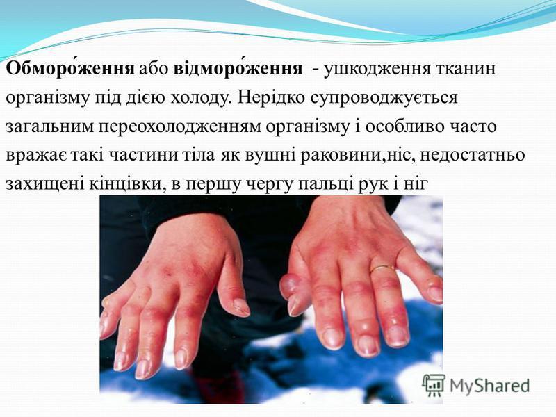 Обморо́ження або відморо́ження - ушкодження тканин організму під дією холоду. Нерідко супроводжується загальним переохолодженням організму і особливо часто вражає такі частини тіла як вушні раковини,ніс, недостатньо захищені кінцівки, в першу чергу п