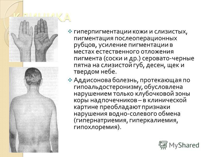 КЛИНИКА гиперпигментации кожи и слизистых, пигментация послеоперационных рубцов, усиление пигментации в местах естественного отложения пигмента ( соски и др.) серовато - черные пятна на слизистой губ, десен, щек и твердом небе. Аддисонова болезнь, пр