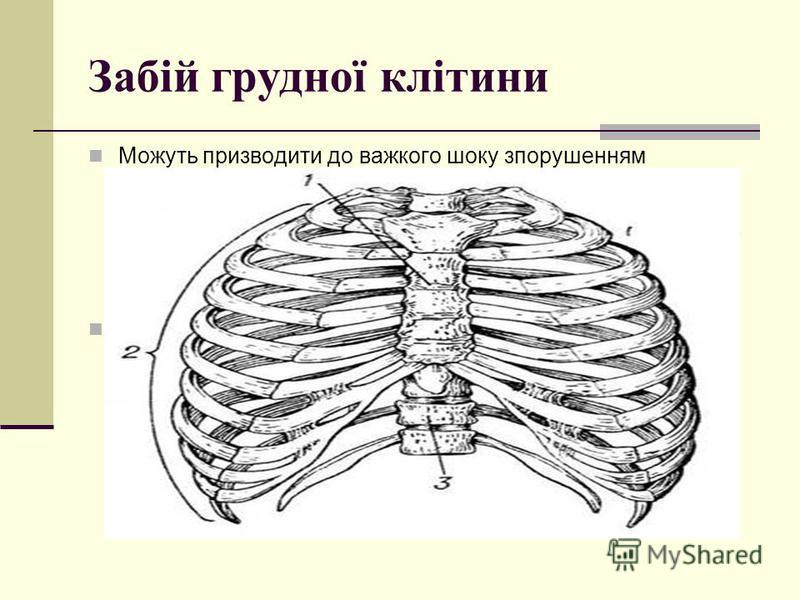 Забій грудної клітини Можуть призводити до важкого шоку зпорушенням кровообігу і дихання. При цьому розвивається так звана травматична асфіксія: лидо, шия, верхня частина грудей стають синюшними, різко виділяється нижня межа цієї зони. Характерні пет