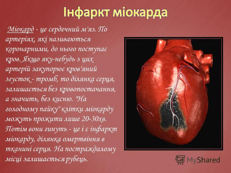 Міокард - це сердечний м'яз. По артеріях, які називаються коронарними, до нього поступає кров. Якщо яку-небудь з цих артерій закупорює кров'яний згусток - тромб, то ділянка серця, залишається без кровопостачання, а значить, без кисню.