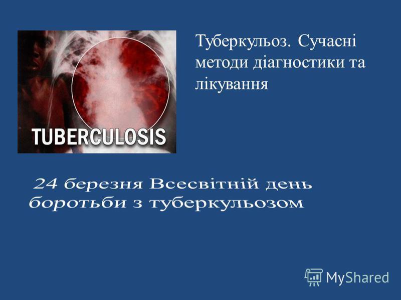 Туберкульоз. Сучасні методи діагностики та лікування