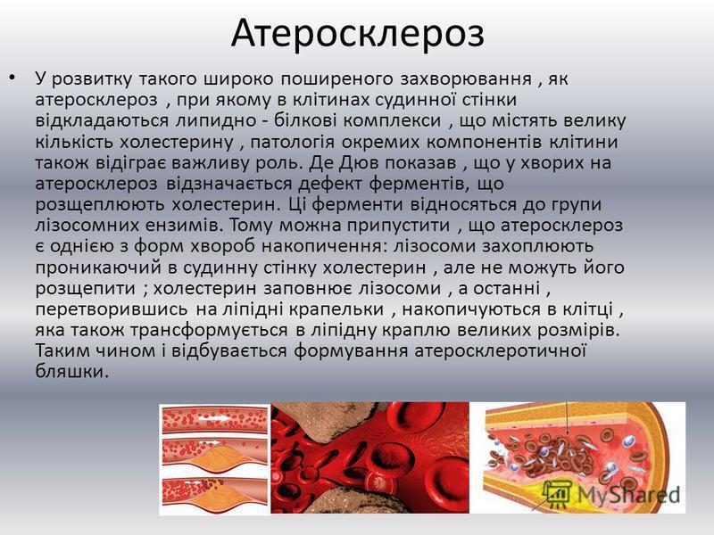 Атеросклероз У розвитку такого широко поширеного захворювання, як атеросклероз, при якому в клітинах судинної стінки відкладаються липидно - білкові комплекси, що містять велику кількість холестерину, патологія окремих компонентів клітини також відіг