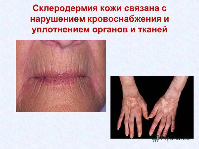 Склеродермия кожи связана с нарушением кровоснабжения и уплотнением органов и тканей