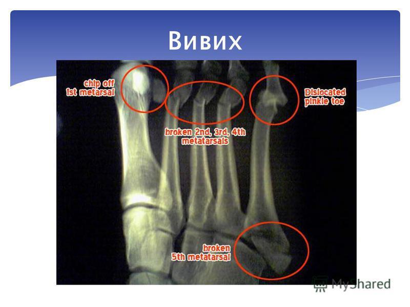 Це зміщення суглобових поверхонь кісток, які утворюють суглоб, після різких рухів, поштовхів або ударів. Унаслідок цього ушкоджується суглобова сумка і звязки, які утримують суглоб. Вивих