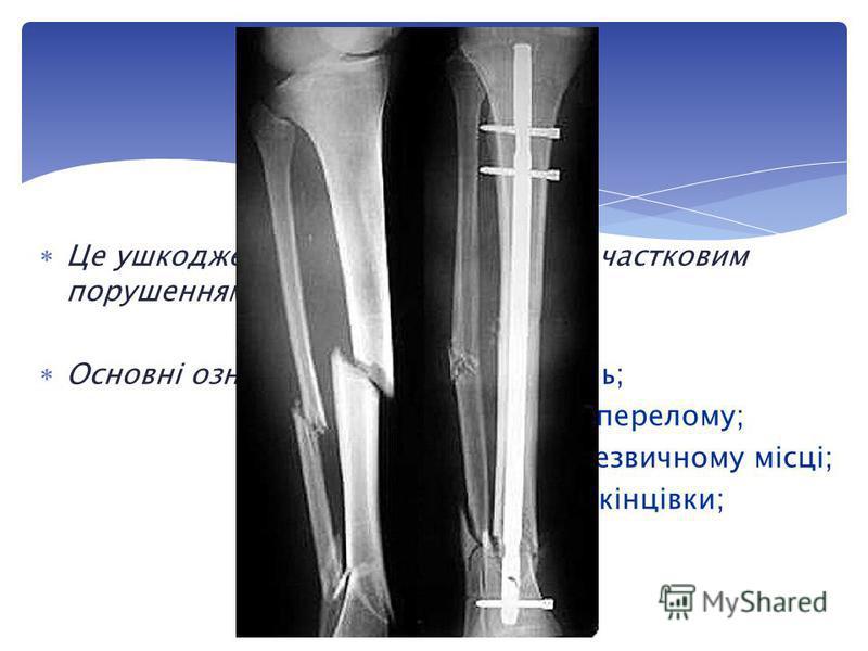 Це ушкодження кістки з повним або частковим порушенням її цілісності. Основні ознаки: різко виражений біль; припухлість у місці перелому; поява рухомості в незвичному місці; видиме скорочення кінцівки; зміна її форми. Перелом