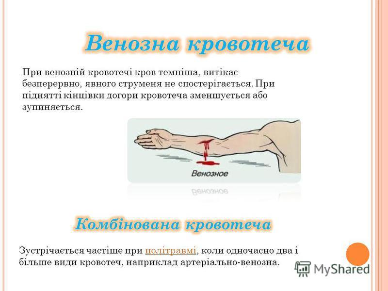 При венозній кровотечі кров темніша, витікає безперервно, явного струменя не спостерігається. При піднятті кінцівки догори кровотеча зменшується або зупиняється.