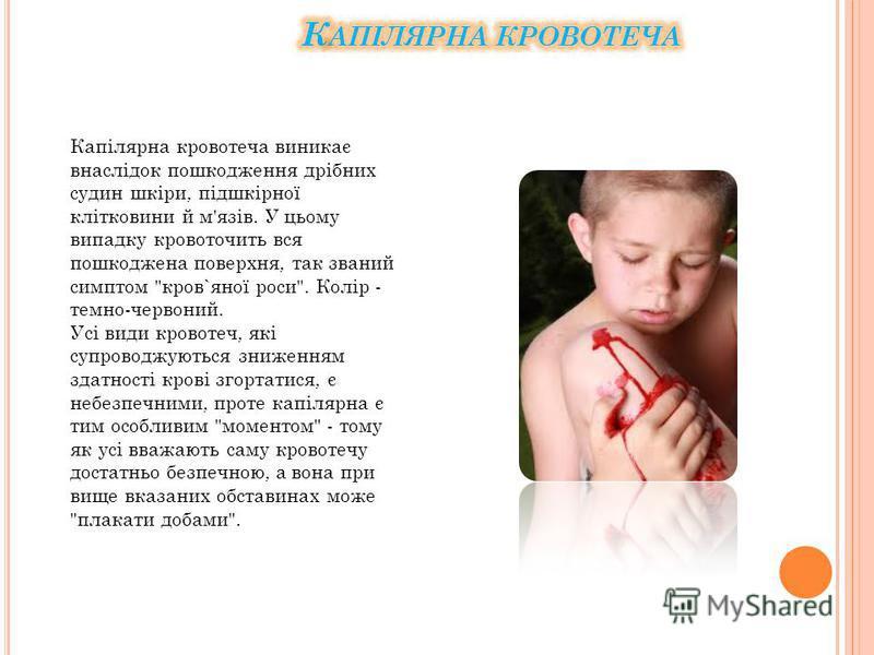Капілярна кровотеча виникає внаслідок пошкодження дрібних судин шкіри, підшкірної клітковини й м'язів. У цьому випадку кровоточить вся пошкоджена поверхня, так званий симптом